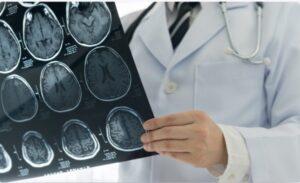 Consulta Neurologista Medical Cidade Operária